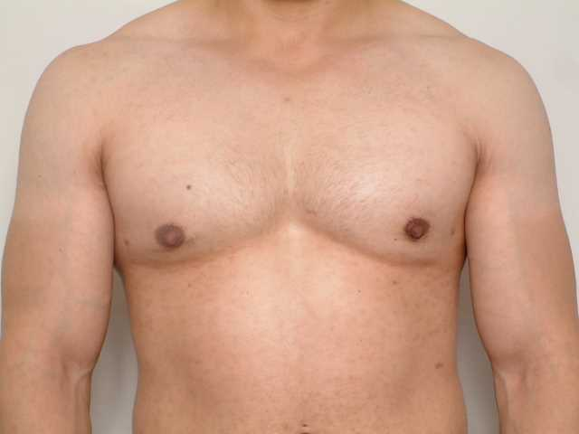 Facts About Gynecomastia
